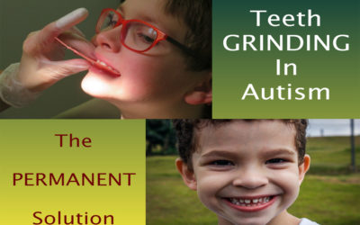 Teeth Grinding in Autism and How to Stop it : The PERMANENT Solution